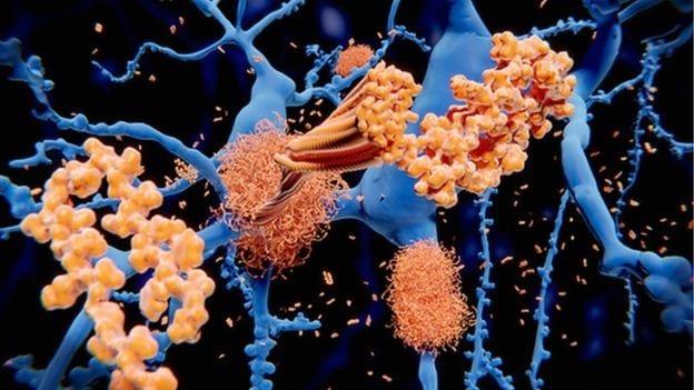 Alzheimers Blood Test