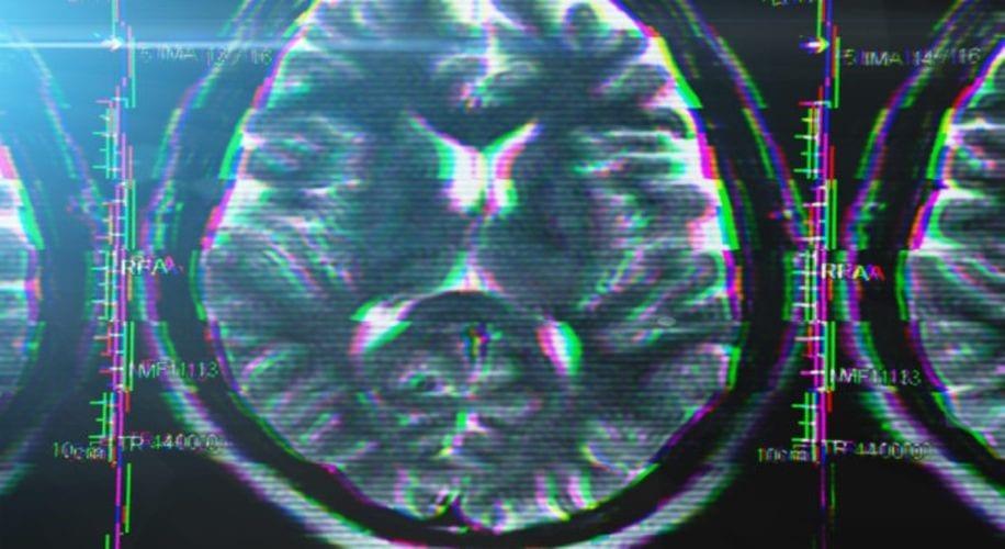 Cannabis Treatment for Dementia